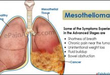 Mesothelioma Symptoms And Cure