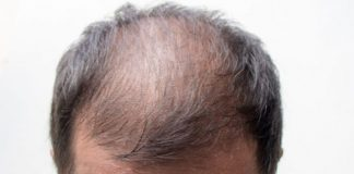 Do You Think Baldness Can Be Treated